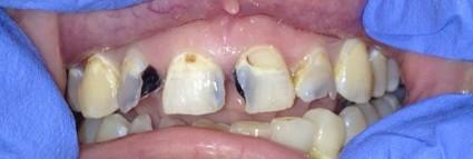 composite-resin-restoration-before